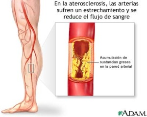 Diabetes y arteriosclerosis